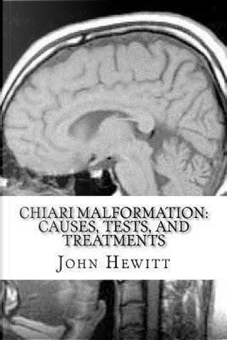 Chiari Malformation by John Hewitt