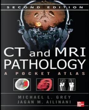 CT & MRI Pathology by Michael Grey